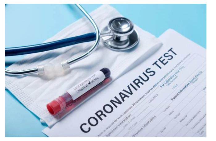 Эксперты объяснили, как долго сохраняются антитела после коронавируса
