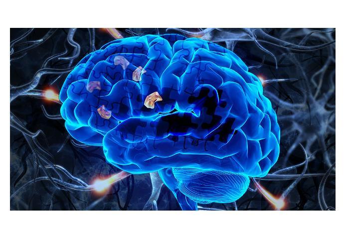 Найден способ распознавания Альцгеймера на самых ранних стадиях