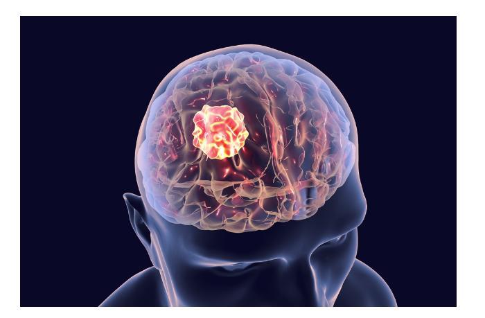 Совершен прорыв в исследовании болезни Альцгеймера